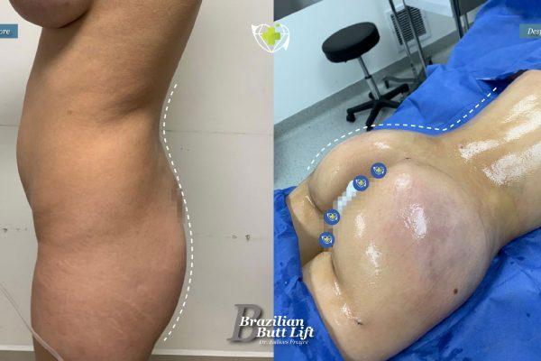 Bbl-dr-frayre-tijuana-cirugia-estetica-2