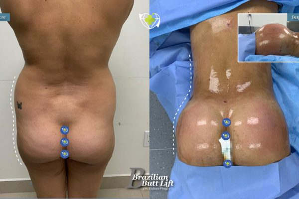 Bbl-dr-frayre-tijuana-cirugia-estetica-3