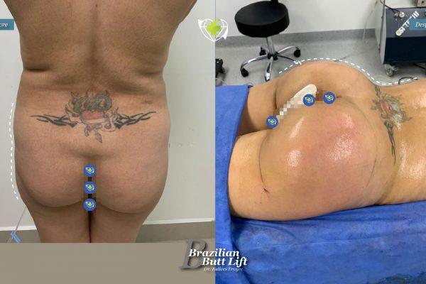 Bbl-dr-frayre-tijuana-cirugia-estetica-5