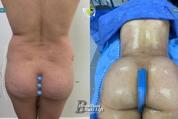 Bbl-dr-frayre-tijuana-cirugia-estetica-6