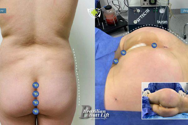 Bbl-dr-frayre-tijuana-cirugia-estetica-7