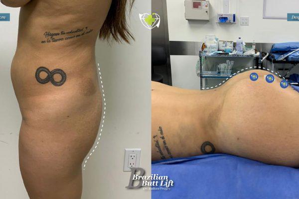 Bbl-dr-frayre-tijuana-cirugia-estetica-8