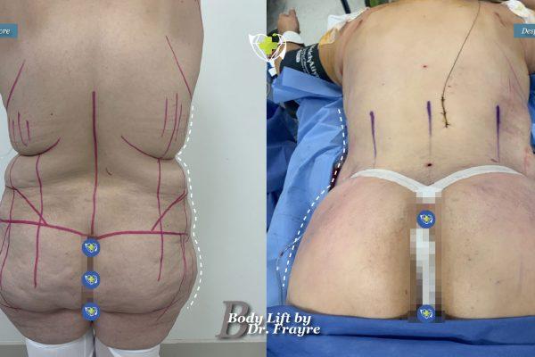 Body-by-dr-frayre-tijuana-cirugia-estetica-3