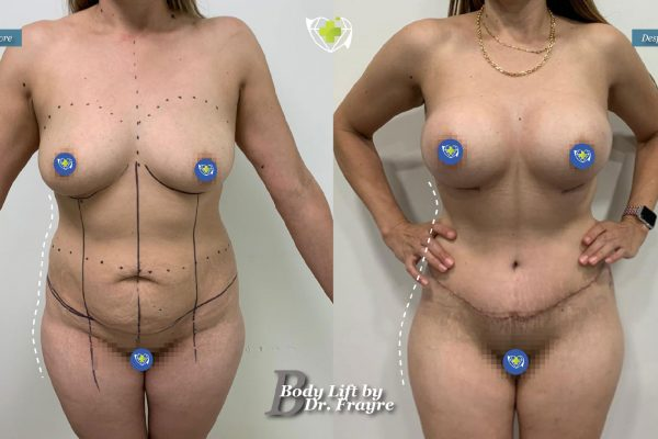 Body-by-dr-frayre-tijuana-cirugia-estetica-6