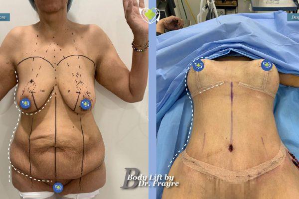 Body-by-dr-frayre-tijuana-cirugia-estetica-7