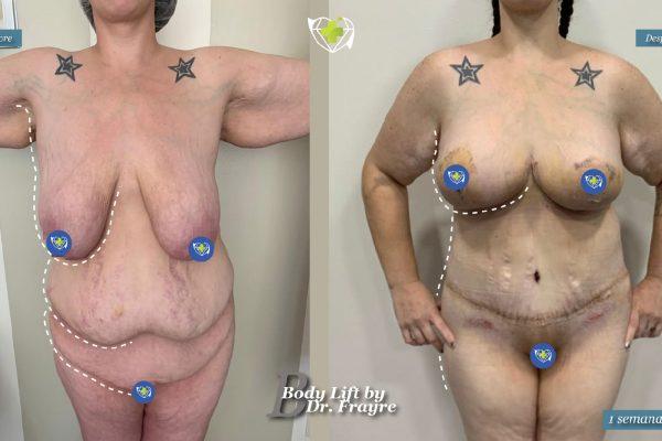 Body-by-dr-frayre-tijuana-cirugia-estetica-9