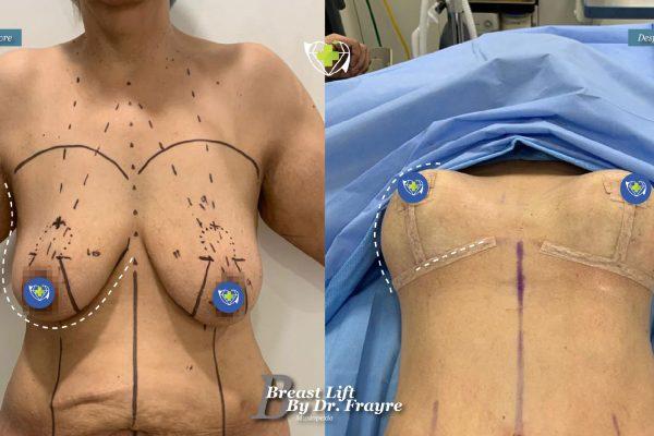 Breast-Lift-dr-frayre-tijuana-cirugia-estetica-1