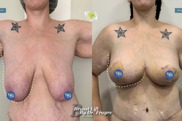 Breast-Lift-dr-frayre-tijuana-cirugia-estetica-2