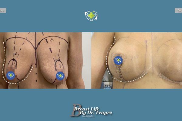 Breast-Lift-dr-frayre-tijuana-cirugia-estetica-4