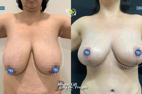 Breast-Lift-dr-frayre-tijuana-cirugia-estetica-5