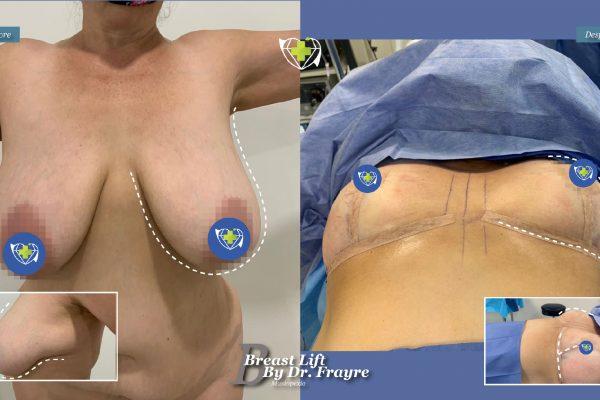 Breast-Lift-dr-frayre-tijuana-cirugia-estetica-9