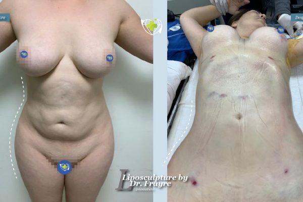 Liposuction-dr-frayre-tijuana-cirugia-estetica-6