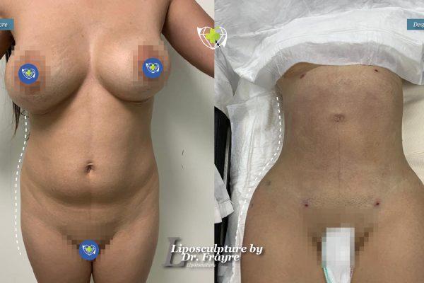 Liposuction-dr-frayre-tijuana-cirugia-estetica-7