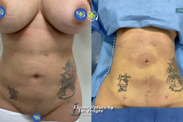Liposuction-dr-frayre-tijuana-cirugia-estetica-8