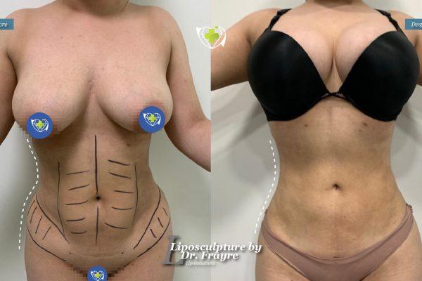 Liposuction-dr-frayre-tijuana-cirugia-estetica-9