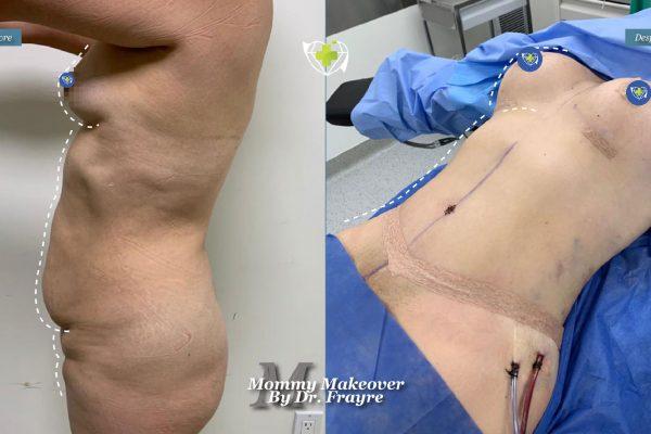 Mommy-makeover-dr-frayre-tijuana-cirugia-estetica-1