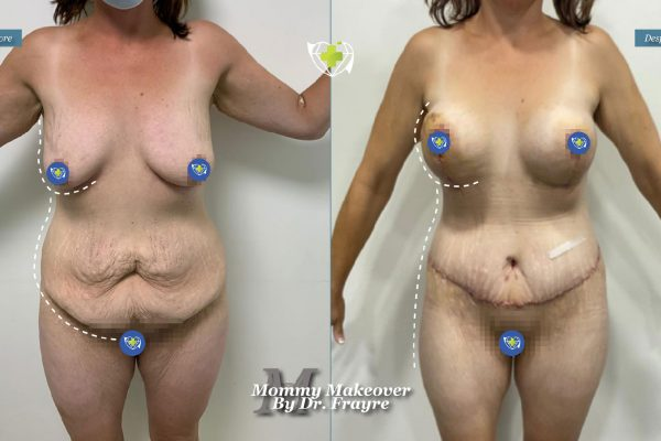 Mommy-makeover-dr-frayre-tijuana-cirugia-estetica-2