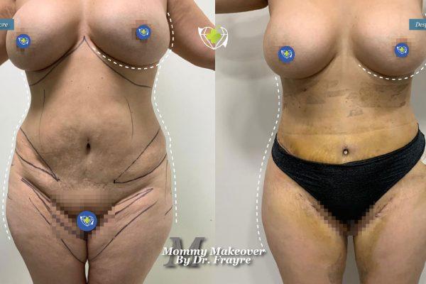Mommy-makeover-dr-frayre-tijuana-cirugia-estetica-4