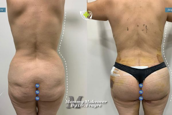 Mommy-makeover-dr-frayre-tijuana-cirugia-estetica-5