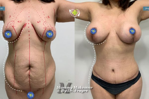 Mommy-makeover-dr-frayre-tijuana-cirugia-estetica-7