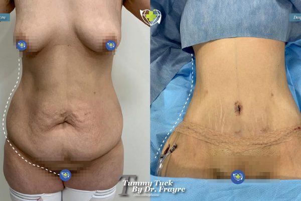 tummy-tuck-dr-frayre-tijuana-cirugia-estetica-1