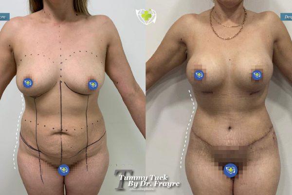 tummy-tuck-dr-frayre-tijuana-cirugia-estetica-10