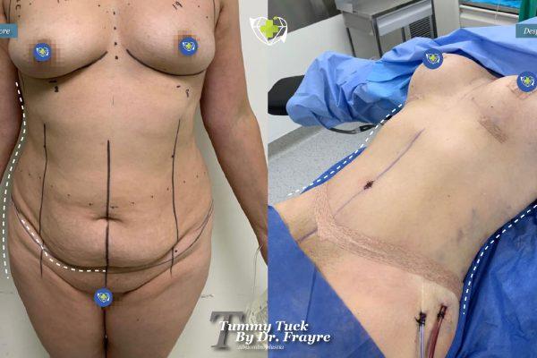 tummy-tuck-dr-frayre-tijuana-cirugia-estetica-2