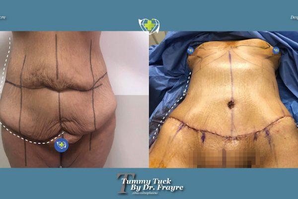 tummy-tuck-dr-frayre-tijuana-cirugia-estetica-3