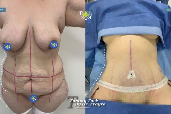 tummy-tuck-dr-frayre-tijuana-cirugia-estetica-4