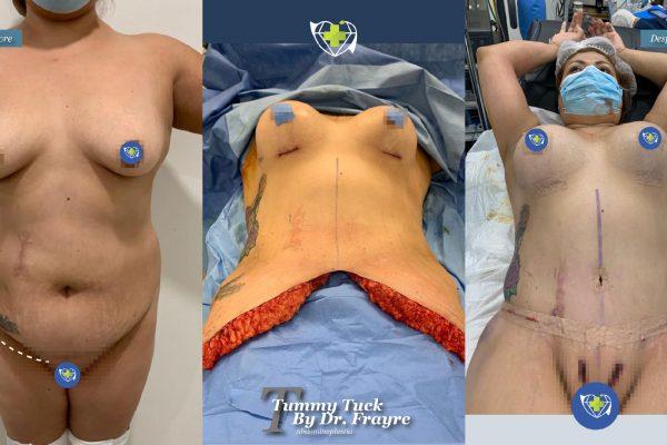 tummy-tuck-dr-frayre-tijuana-cirugia-estetica-9